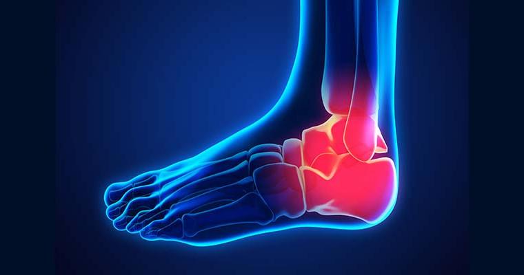 Lesiones Osteocondrales de Talo